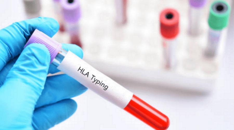 HLA Typing Blood Tube
